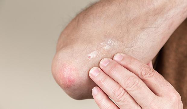 Aceite de coco para psoriasis